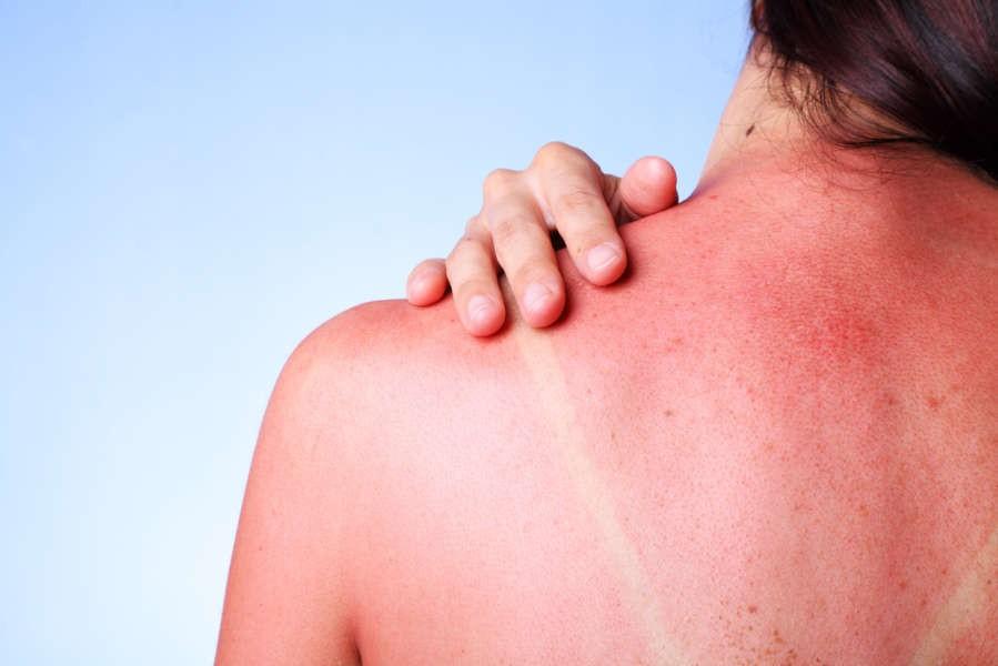 I migliori superfood per proteggere la pelle dal sole